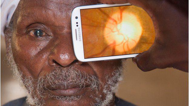 Pocket Optician Device