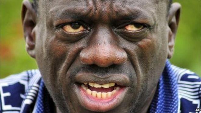 Dr. Kizza Besigye