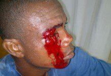Justice Adzakumah, demo victim