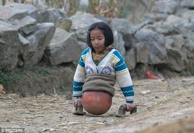 Qian Hongyan from Yunnan, pictured aged 10, lost her legs in 2000 after a car accident that nearly took her life