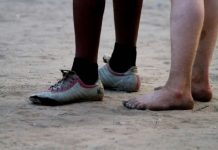 AFP/File / Yasuyoshi Chiba Albinos, who have white skin and yellow hair as a result of a genetic disorder, are regularly killed in several African countries including Malawi, Mozambique and Tanzania
